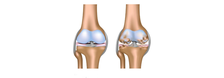 Artrose knieën