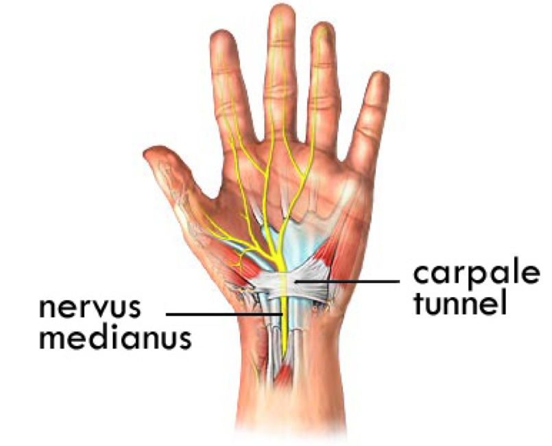 Carpaal tunnel syndroom - hand