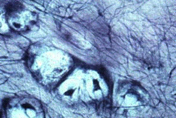 Shockwavetherapie bij knie artrose