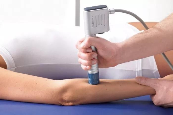 Slijmbeursontsteking Arm
